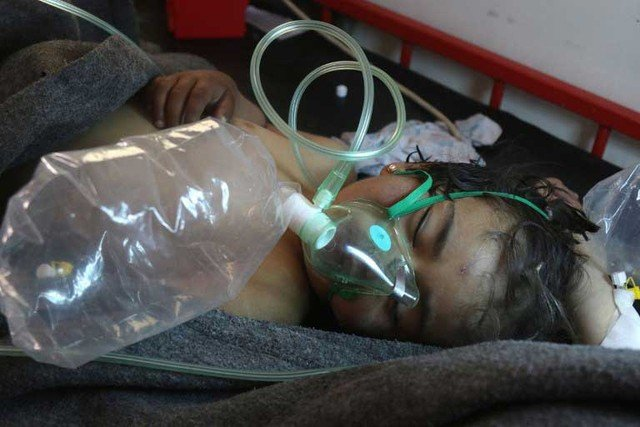 Criança síria recebe tratamento após suspeita de ataque com arma química em Khan Sheikhun. (Foto: Mohamed al-Bakour/AF)