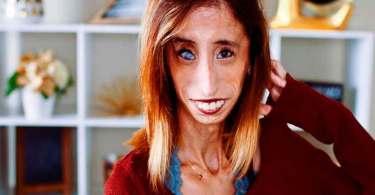 """""""Deus me ajudou a superar"""", diz mulher que já foi considerada 'a mais feia do mundo'"""