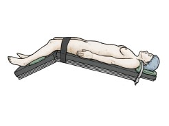 Medical illustration 4