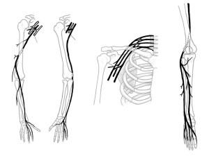 Nervus radialis, Nervus Ulnaris, Plexus brachialis and Nervus fibularis