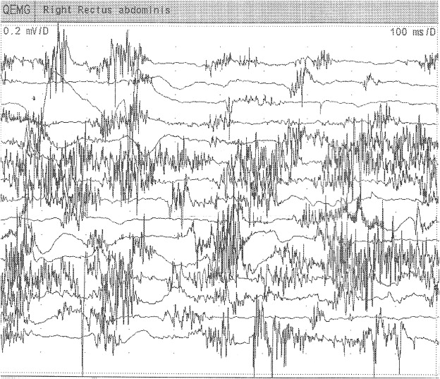 Neonatal seizures associated with a severe neonatal