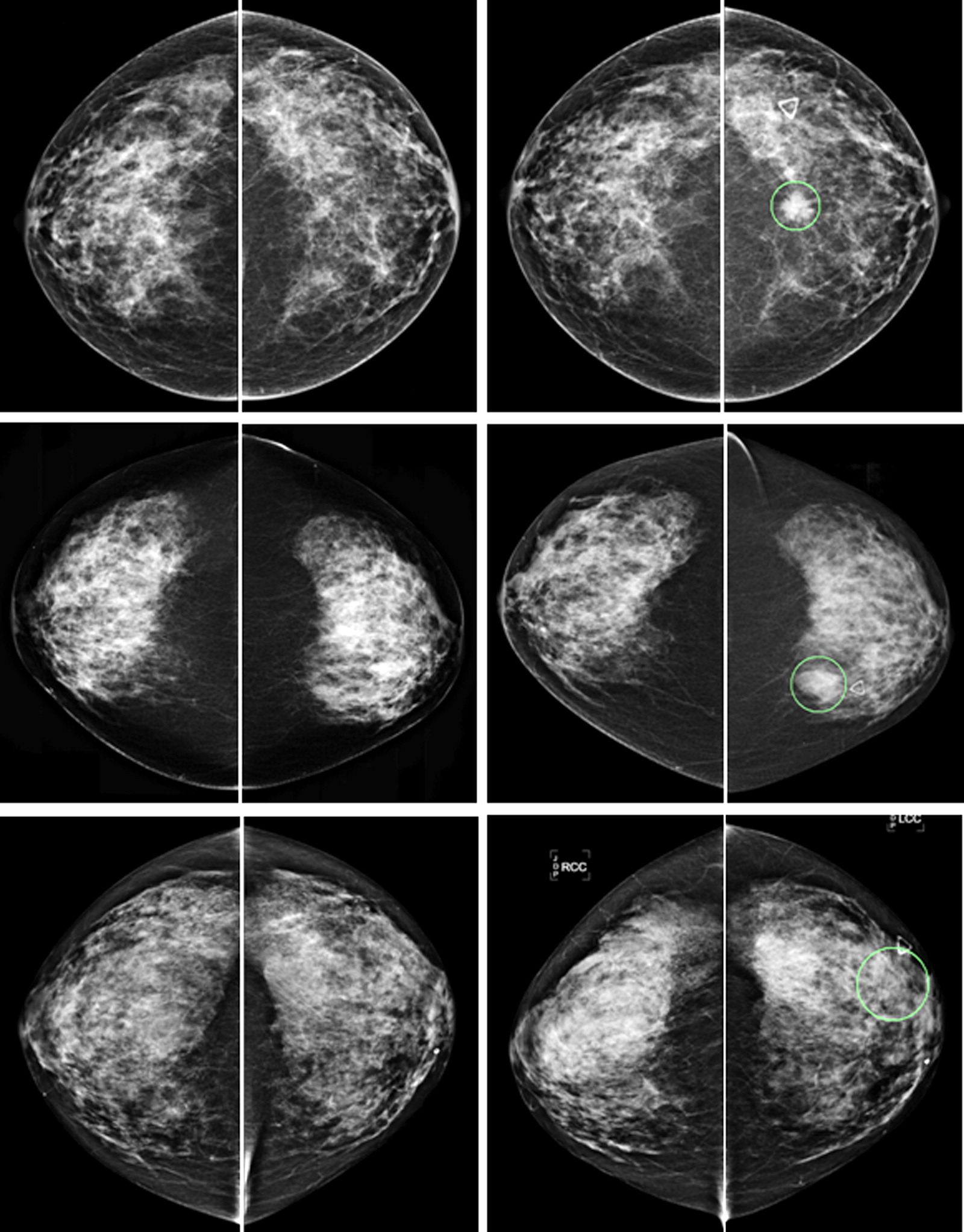 Bilateral Mammographic Density Asymmetry And Breast Cancer Risk A Preliminary Assessment
