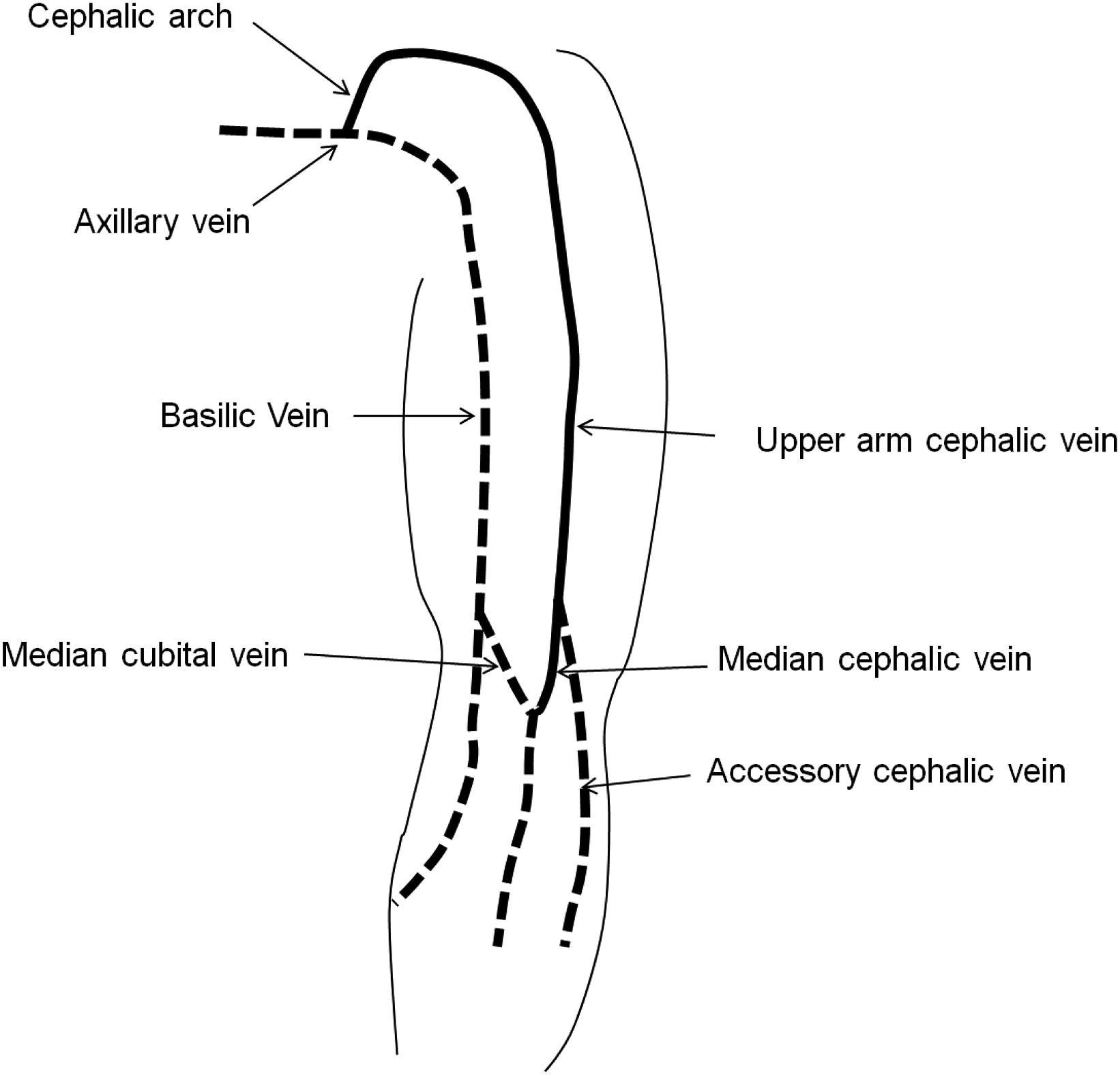 antecubital fossa diagram spst relay wiring clinical significance of upper arm cephalic vein patency