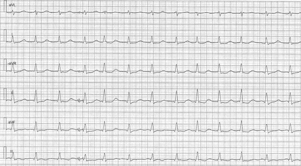 ECG test (quiz): Basic ECG interpretation