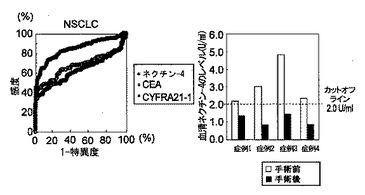 癌の治療および診断の標的遺伝子としてのネクチン-4