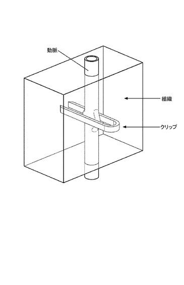 縫合装置及び方法