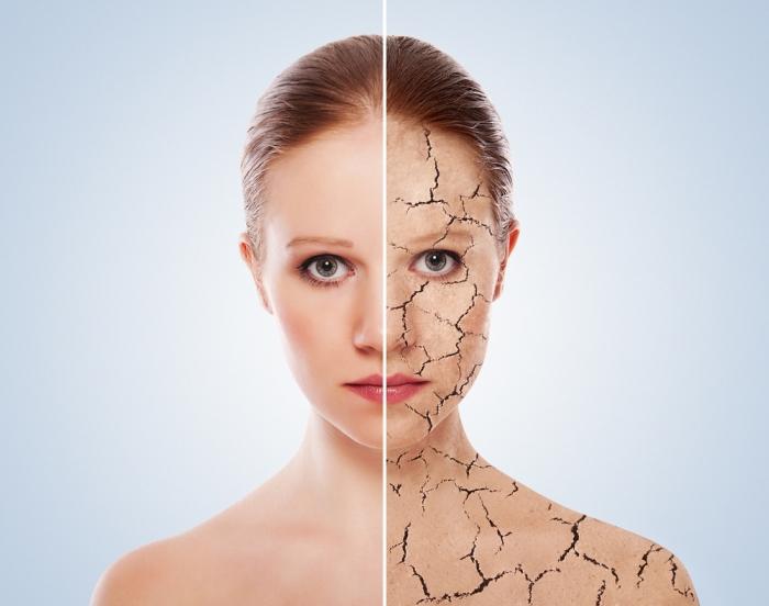 たった2つの注意だけで、乾燥肌がもちもち肌に!<br>〜対処療法ではなく、自身が健康を取り戻す〜