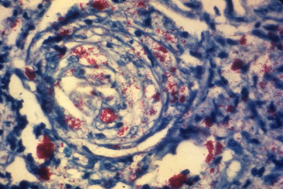 Skin biopsy reveals a nerve infiltrated by Mycobacterium leprae (red-staining) bacteria. (PHOTO: CDC'S PUBLIC HEALTH IMAGE LIBRARY)