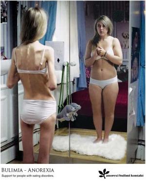 """anorexia - """"La gran verdad"""" de la anorexia y la bulimia: ¿se merecen esto nuestras hijas?"""