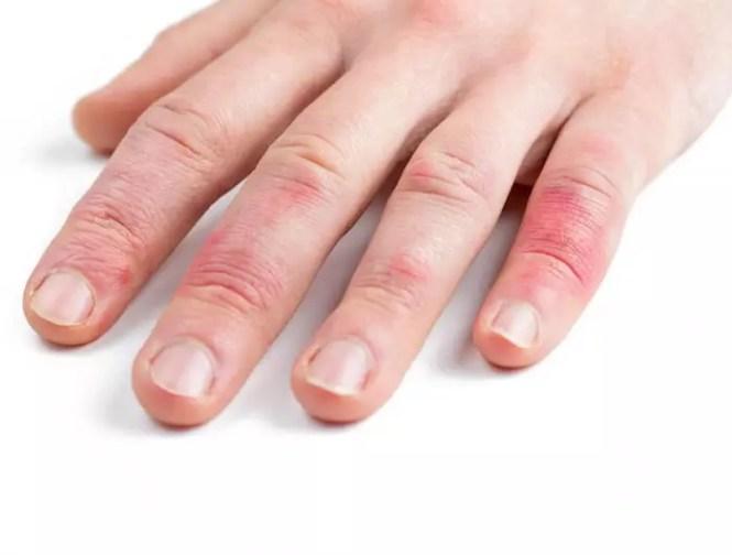 juckende finger