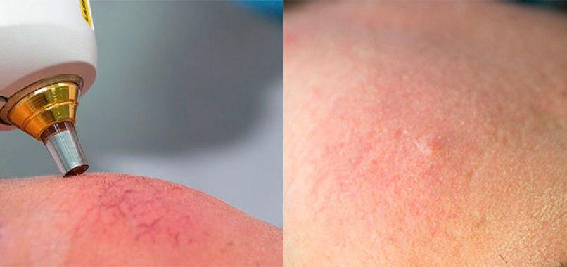 El antes y después del láser para quien padece rosácea