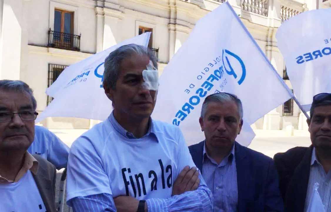 Presidente de Colegio de Profesores llegó con parche en el ojo a reunión en La Moneda