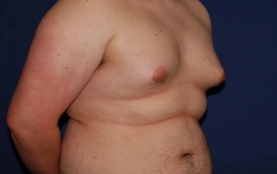 Ginecomastia hombres con mamas de mujer