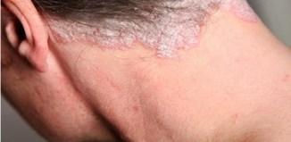 Psoriasis que es y tipos de psoriasis