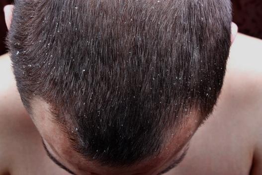 Tipos de caspa: caspa seca y caspa seborréica