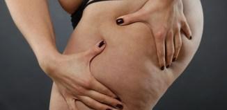 Liposucción con láser o laserlipólisis