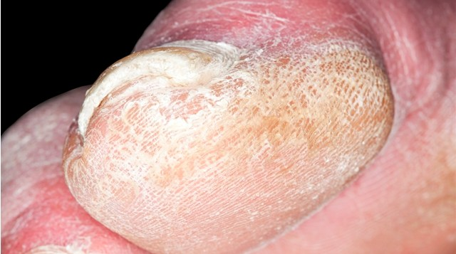 Onicomicosis tratada con laser