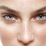 Tratamientos clarificantes manchas en la piel