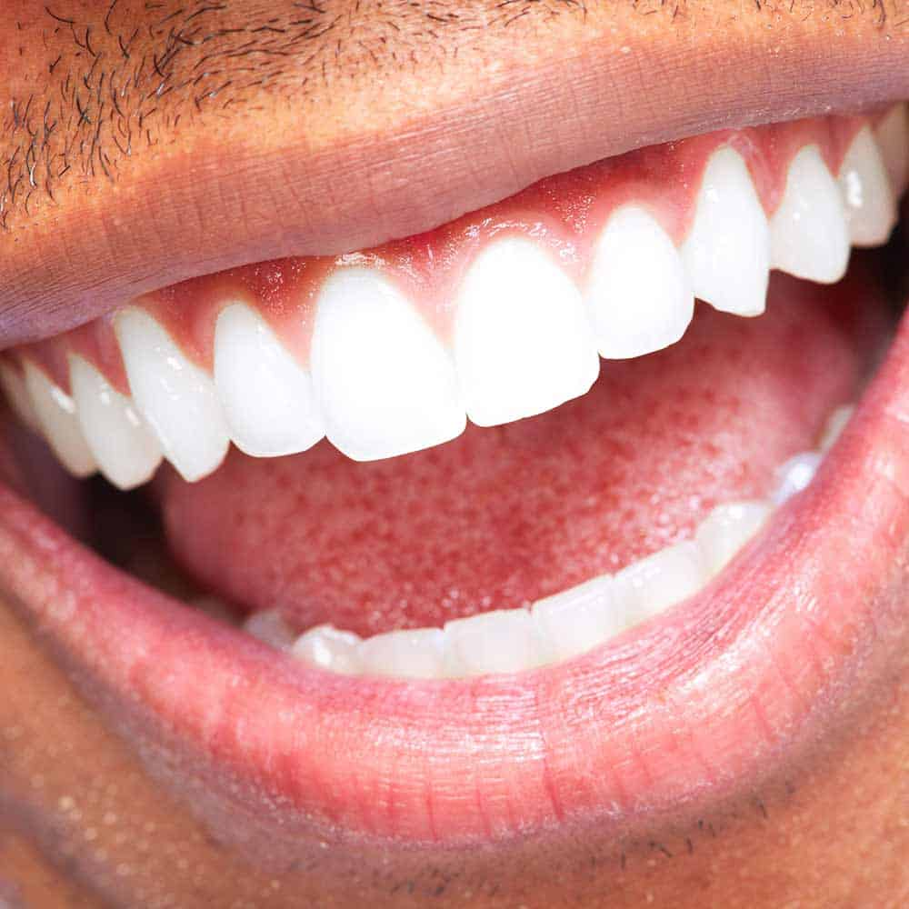 Bleeding gums when brushing teeth - Electric Teeth