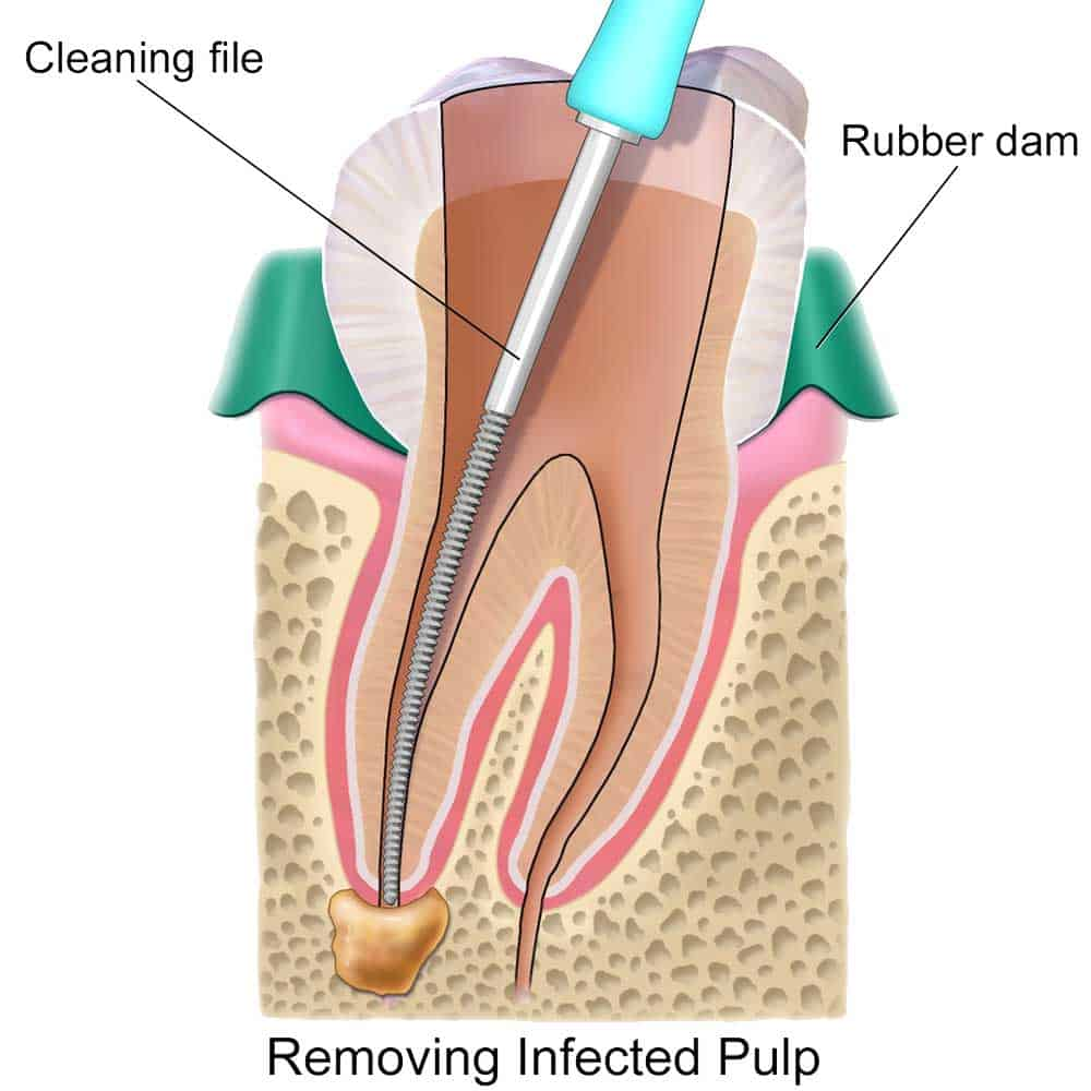 medium resolution of how to treat a tooth abscess or relieve symptoms at home