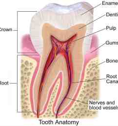 causes of dental abscesses [ 1000 x 1000 Pixel ]