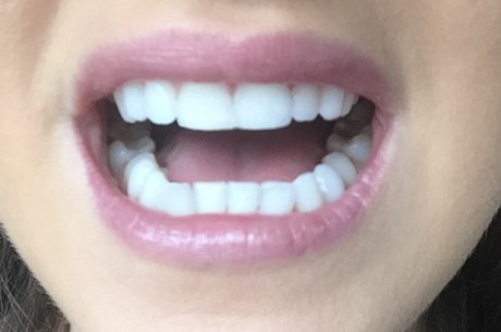 white box teeth whitening