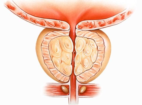 Uretra estrecha en HPB