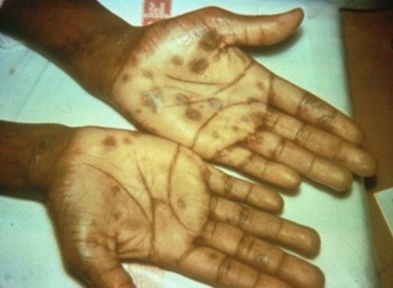 Erupción de la mano por sífilis