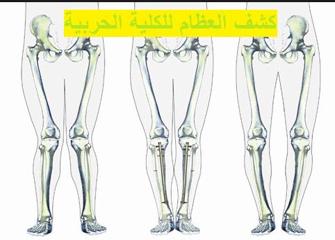 كشف العظام للكشف الطبي للكلية الحربية