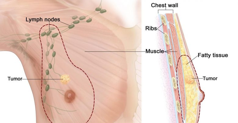 مارس سباك لامع اعراض ورم الثدي الحميد عند الرجال Dsvdedommel Com