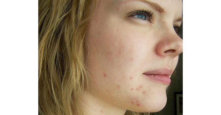 acne make up
