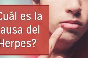 Causas herpes labial