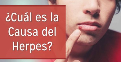 herpes labial causas