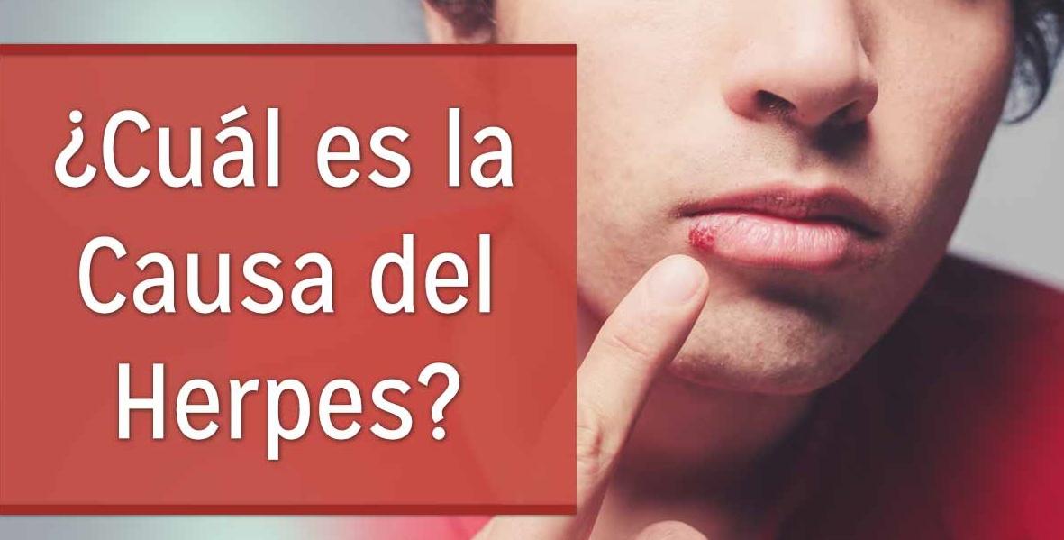 Herpes labiales causas de las