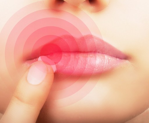 herpes en el labio