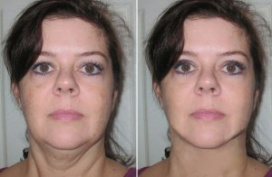 Neck Lift Cost In Florida