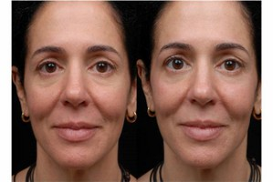 Pelleve_Before_and_Immediately_After_Treatment [320x200].jpg