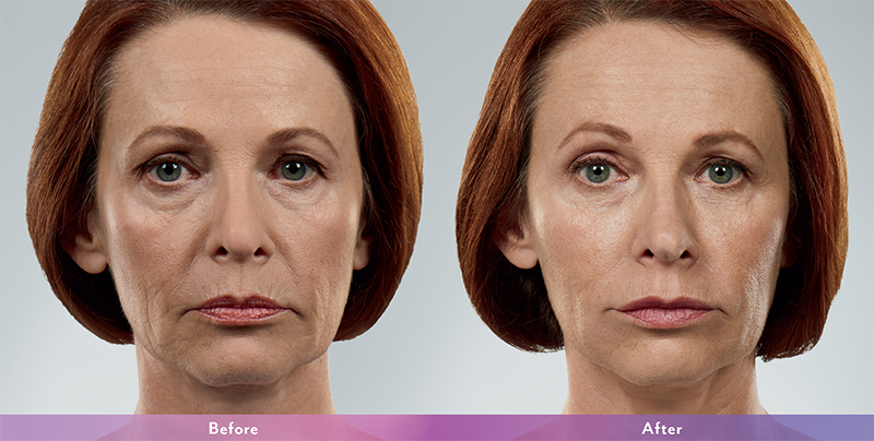 Injectables | BOTOX | Juvederm | Restylane | Columbus MS