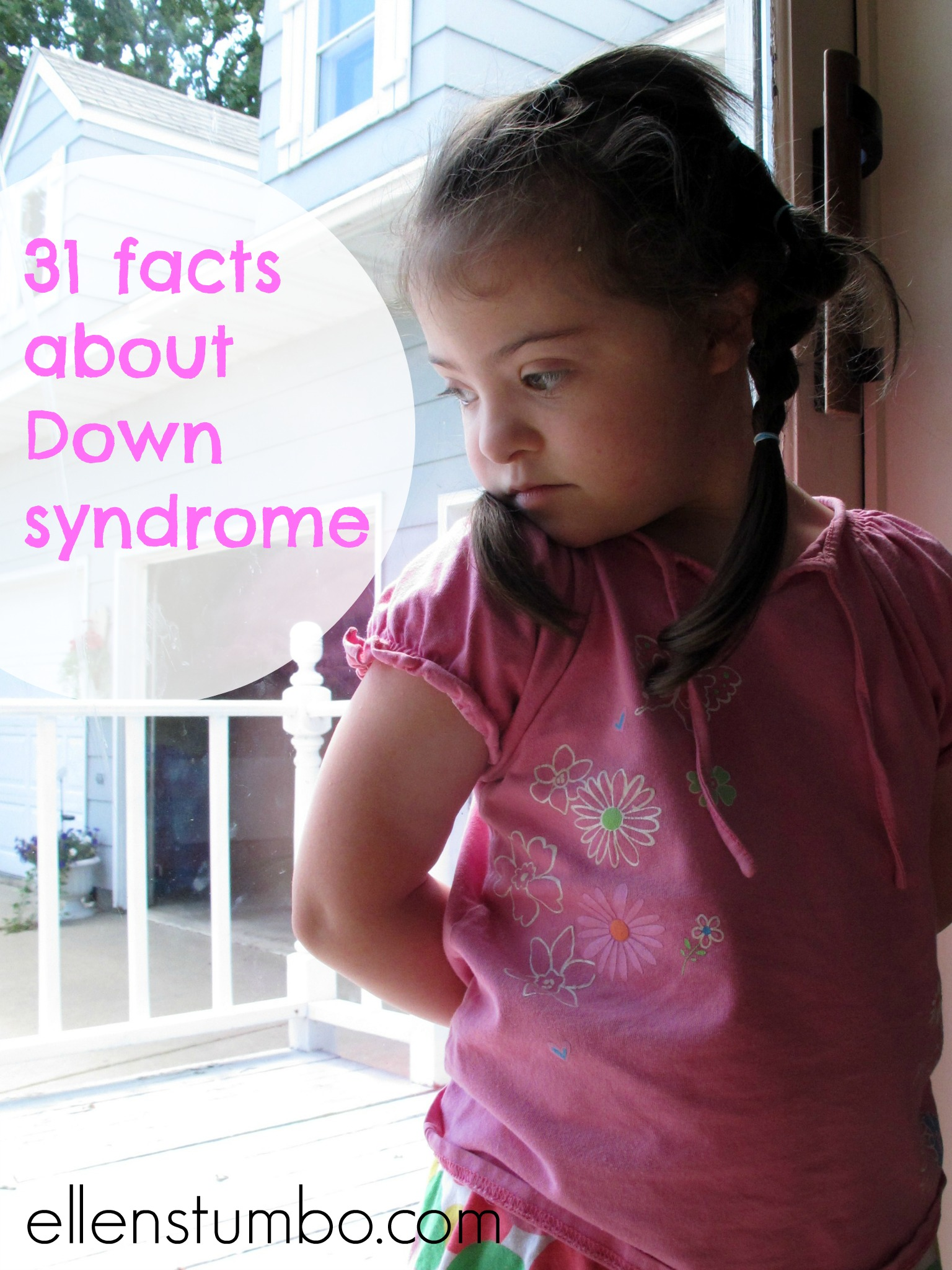 31 Facts About Down Syndrome