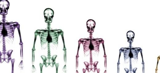 12 Έλληνες στην ομάδα που ανακάλυψε νέα γονίδια που επηρεάζουν το ύψος