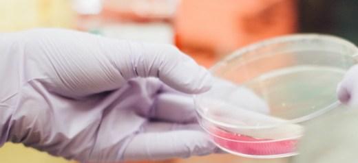 Ελληνίδα επικεφαλής σε σημαντική μελέτη που αποκαλύπτει νέα διάγνωση για τη νόσο Αλτσχάιμερ
