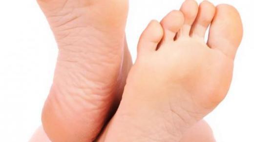 ما علاج تشققات القدمين ؟