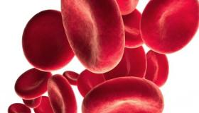تشخيص مرض فقر الدم