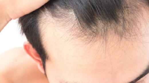 تفسير حلم رؤية الصلع وتساقط الشعر فى المنام