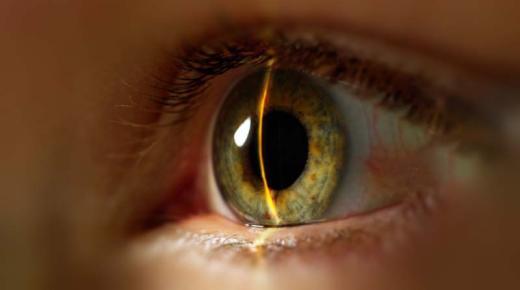 تفسير حلم رؤية العين فى المنام