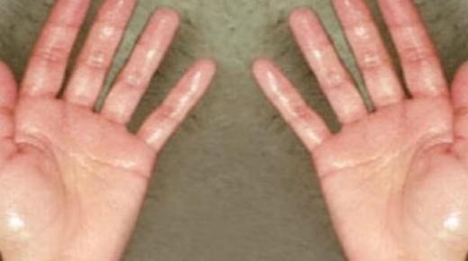 ما أسباب تعرق اليدين ؟