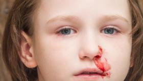أسباب الرعاف عند الأطفال