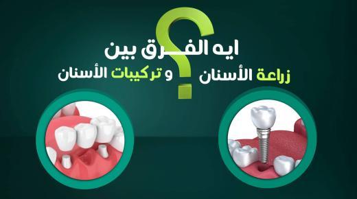 الفرق بين زراعة الأسنان وبين تركيبات الأسنان