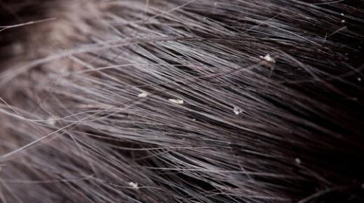 علاج قشرة الرأس بوصفات منزلية