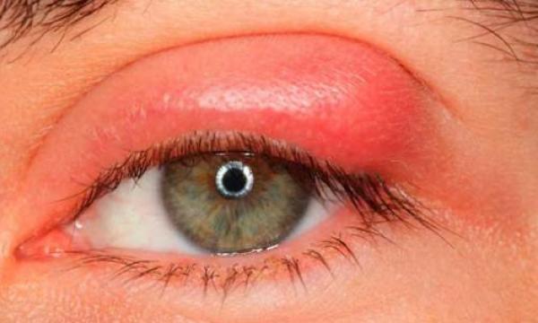 علاج حساسية جفن العين بالأعشاب